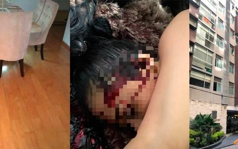 Matan de salvaje golpe en la cabeza a colombiana en su departamento