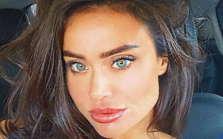 Muere modelo tras inyectarse sustancia recomendada por Kim Kardashian
