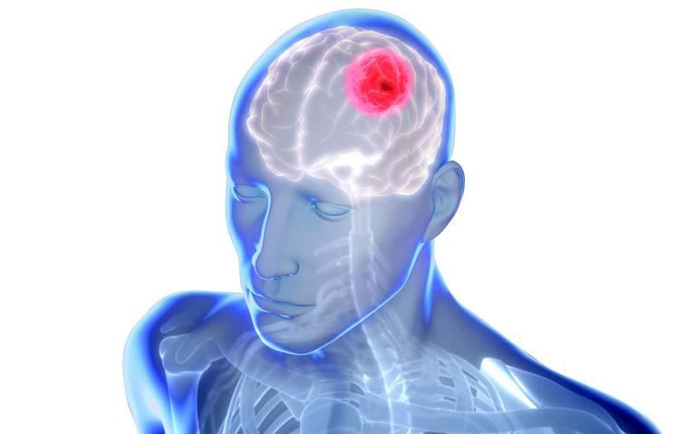 Hallan cómo neutralizar letal tumor cerebral