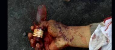 Se corta el cuello con botella rota en lo que parece un suicidio
