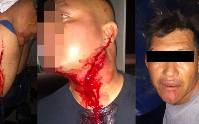 Al ser detenido por orinar en vía pública corta garganta de policía