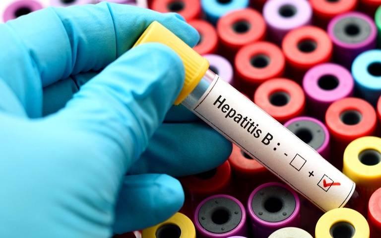Reportan 15 casos de hepatitis en Chihuahua