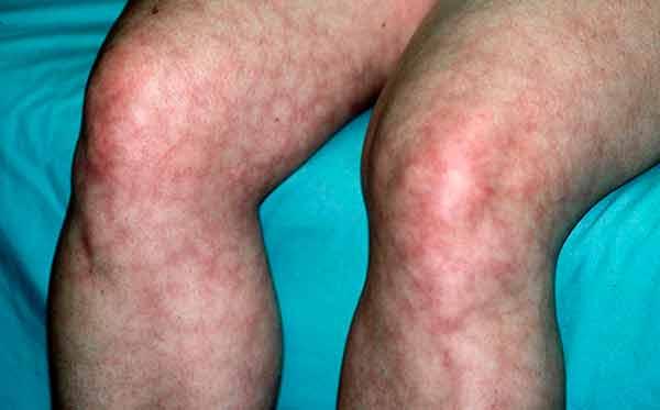 Aquejan 20 enfermedades raras a la población mexicana