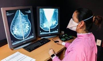 Informa Salud Edoméx que se retoman las actividades de las unidades móviles de mastografía