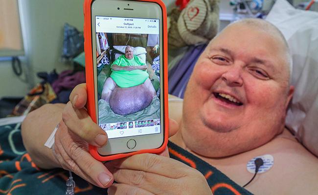 Le extirparon un tumor de 59 kilos
