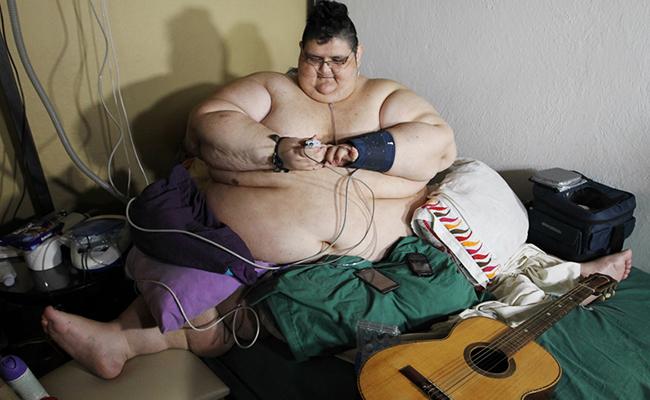 Joven mexicano que pesa 590 kg, se encuentra bajo tratamiento