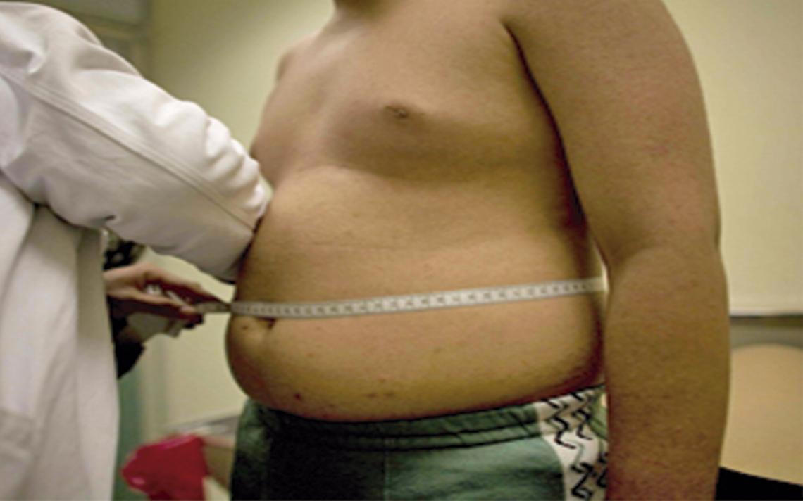 ¡Terrible epidemia! Obesos 500 mil niños en la CdMx