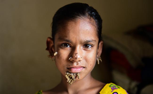 La niña árbol vive en Bangladesh