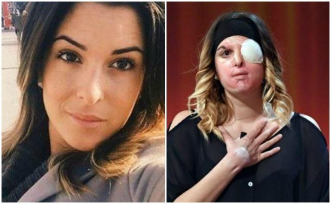 Reaparece modelo italiana que fue atacada con ácido por exnovio