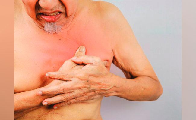 Edomex registra casos de cáncer de mama en varones