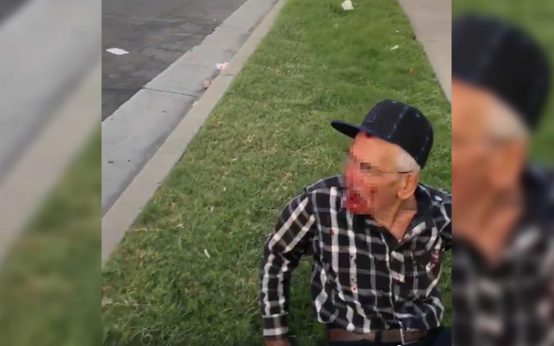 [VIDEO] Donan 200 mil dólares a abuelito mexicano golpeado en California