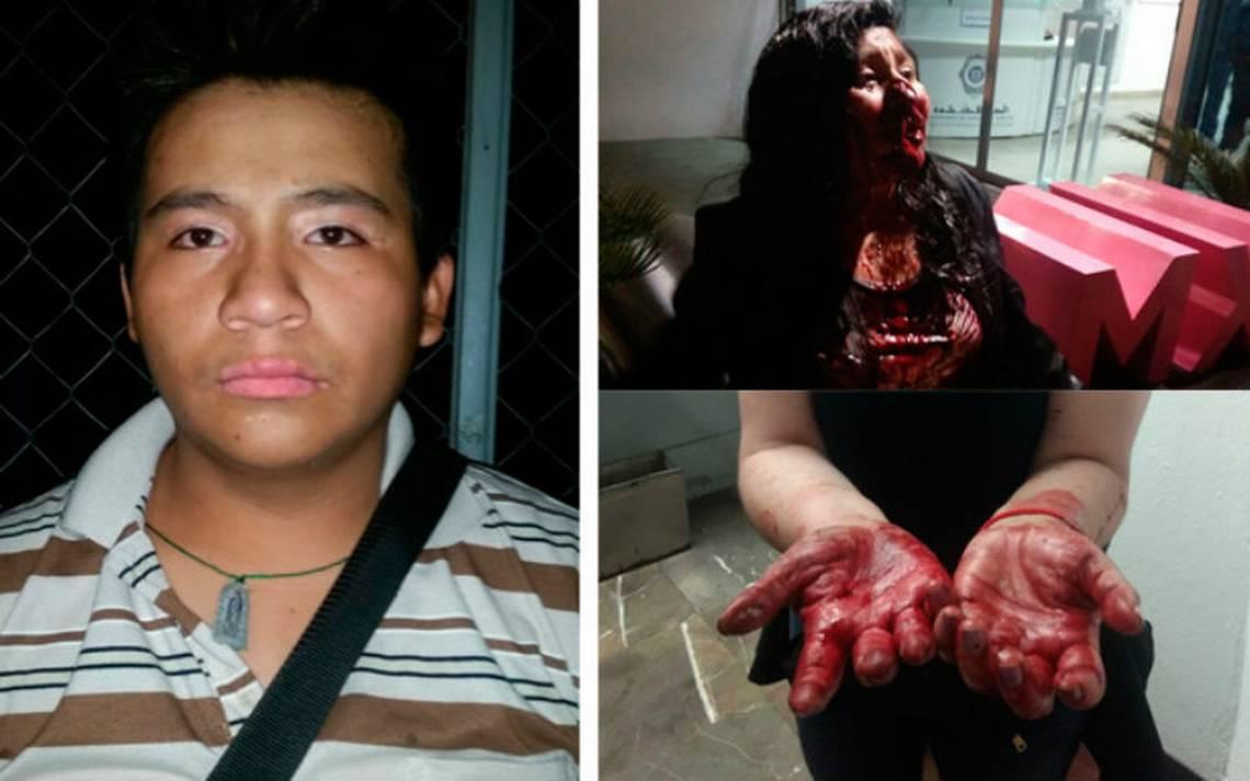 """Ataca """"El Queso de puerco"""" en Metro Tacuba, acuchilla en la cara a joven por oponerse a asalto"""