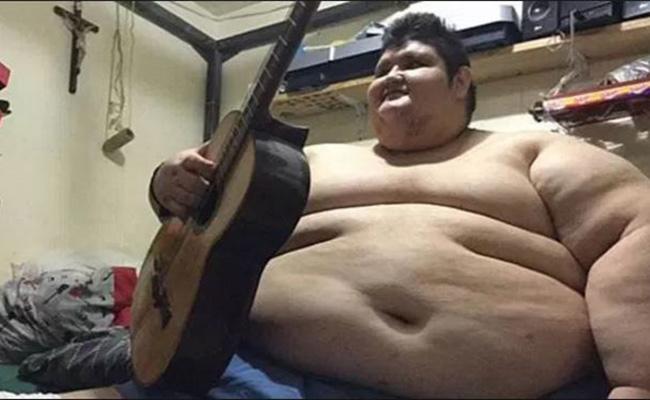 Juan Pedro, el hombre más obeso del mundo, pierde 175 kilos
