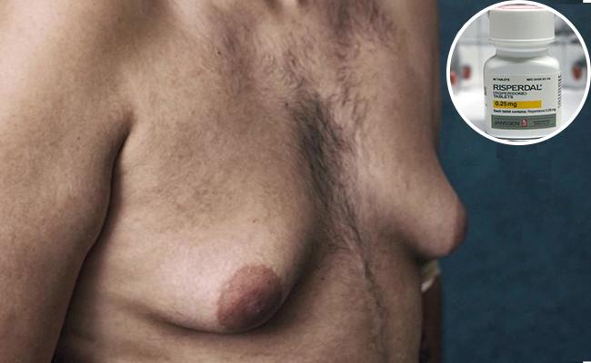 ¿Qué bellos son tus senos de hombre? Demandan por fármaco aumenta busto