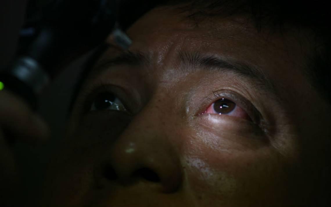 Se disparan casos de conjuntivitis en Chiapas