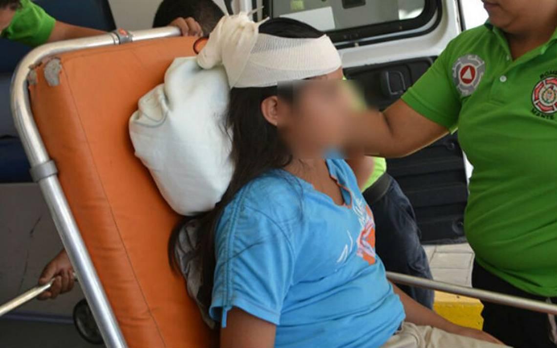 Niño enojado ¡le encaja tijeras a su hermana en el cráneo!
