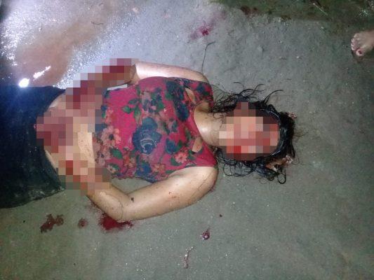 Temen por la vida de la jovencita macheteada en Huixtla