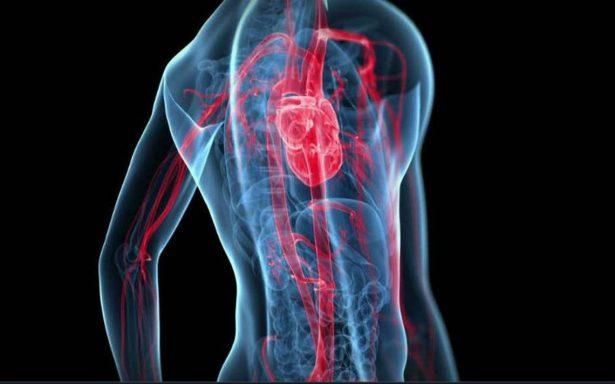 Síntomas de infarto en diabéticos y mujeres distintos al resto de gente