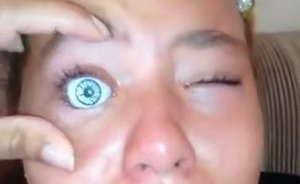 Niña quería tener las pupilas azules… Se pone un ojo de muñeca