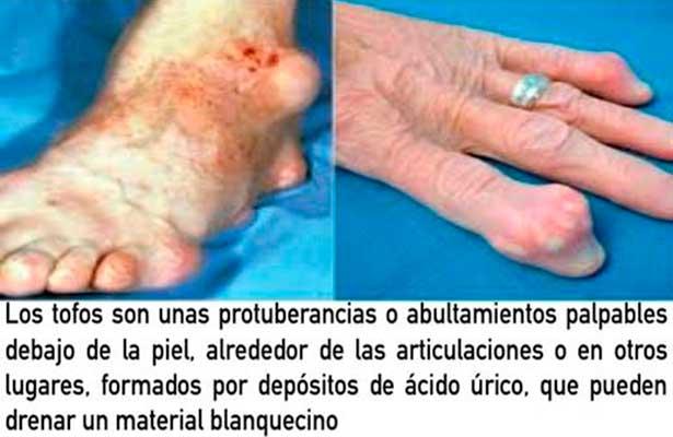 la leche es mala para acido urico como quitar el dolor del pie por gota remedios caseros para el acido urico en las manos