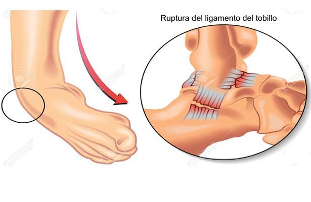 Esguince de tobillo es una lesión muy frecuente, sobre todo en los deportistas