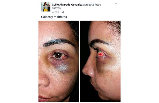 Esposa de secretario de Gobierno, Rogelio Franco, muestra golpes en el rostro
