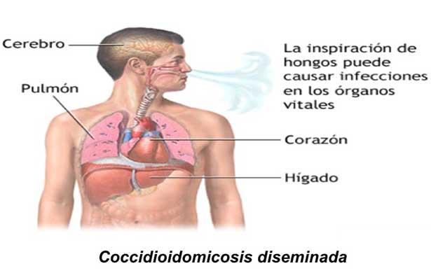 "La coccidioidomicosis o ""fiebre del valle de San Joaquín"""