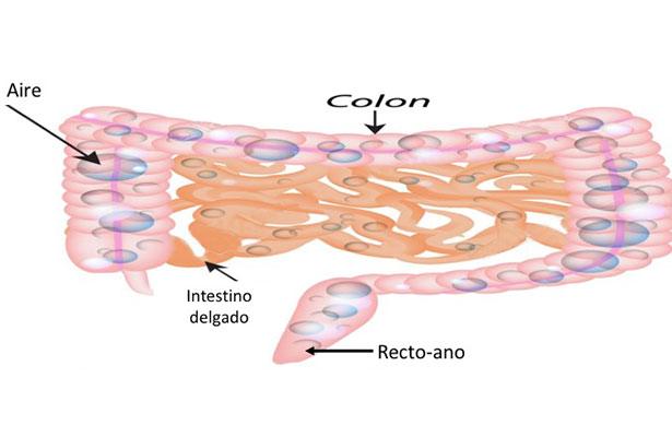 Flatulencia o gas intestinal, puede ser señal de una enfermedad crónica