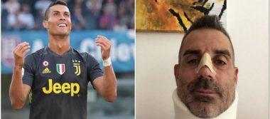 Desde el hospital, portero del Chievo bromea por golpe que le dio CR7