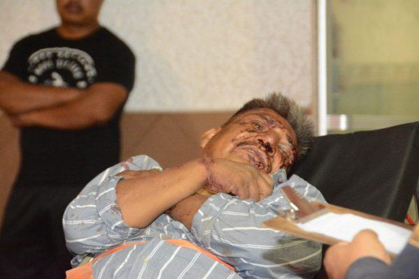 Recibe fuerte golpiza tras ser asaltado en la madrugada rumbo Aquiles Serdán