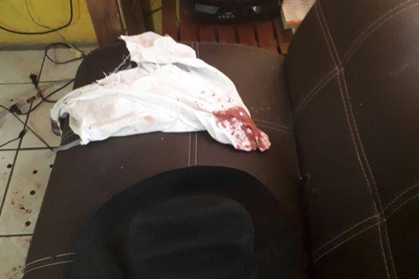 Resulta delicado de salud joven golpeado por municipales