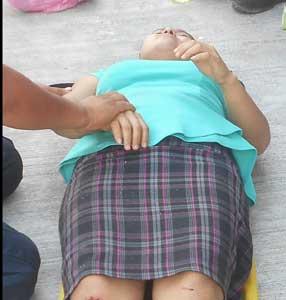 Sufre lesión tras caída