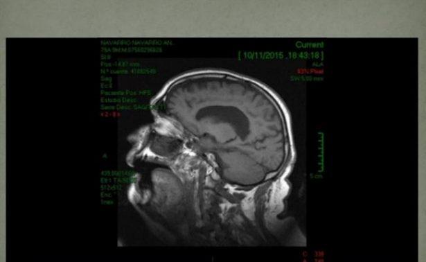 Tetrapléjico recobra uso de su brazo gracias a implantes en el cerebro
