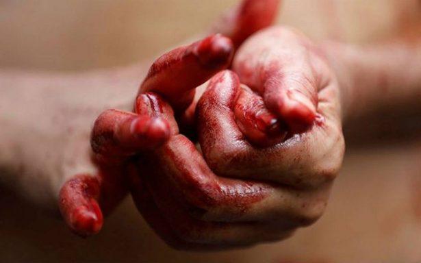 ¿Estigmas? Mujer suda sangre por la cara y manos