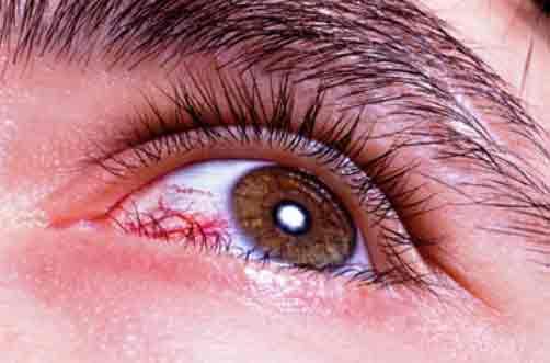 Diabetes mellitus deteriora la visión
