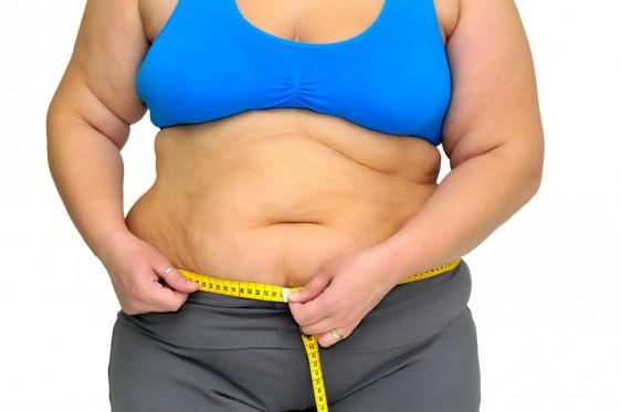 Obesidad causa mayor mortalidad en mujeres