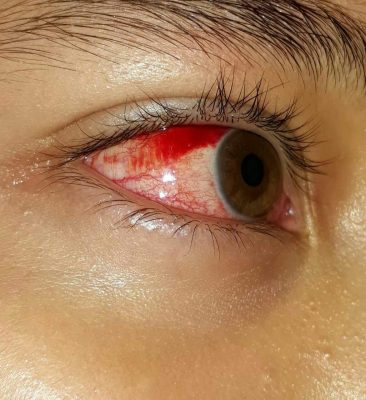 La conjuntivitis es una enfermedad de los ojos, muy contagiosa