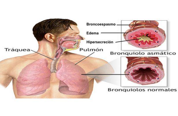 Asma bronquial, una enfermedad que puede llegar a ser mortal