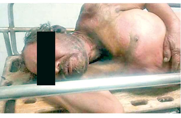 Salvajismo: queman a otro indigente mientras dormía