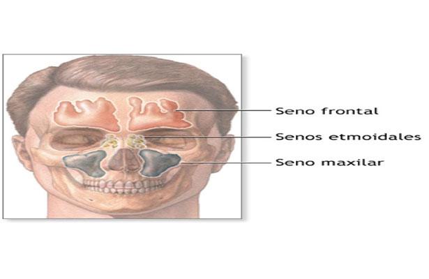 Sinusitis o rinosinusiti, enfermedad que puede llegar a causar la muerte
