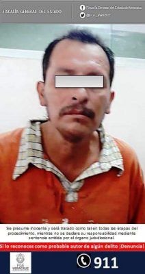 Detenido e imputado por lesiones dolosas calificadas