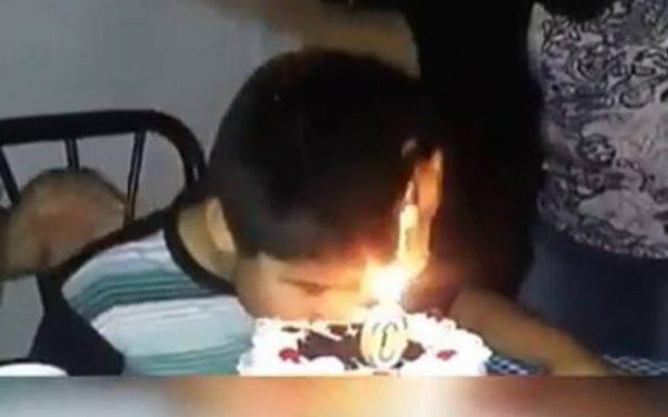 [Video] Niño chileno se quema la cara con las velitas de su pastel y se burlan de él
