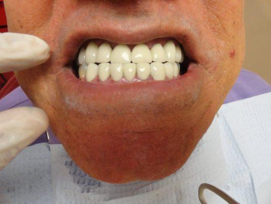Detectan consultorio dental clandestino en Álamos