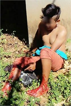 Sicarios hieren a balazos a un niño en Tuxtepec