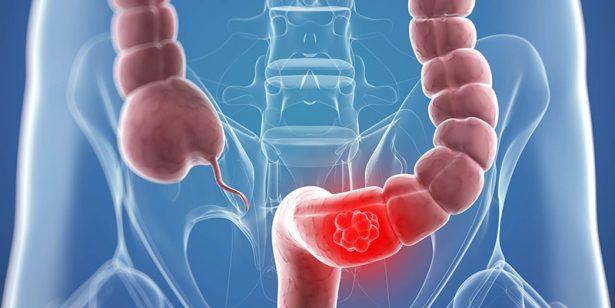Ocupa Sonora tercer lugar en cáncer de colon