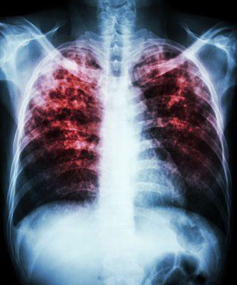 Sonora segundo lugar en el norte del país con casos de tuberculosis
