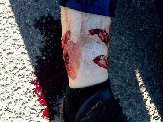 Ataca pitbull a una mujer; la deja con severos daños en la pierna