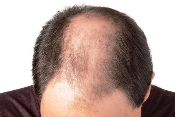 Provocan alopecia estrés y hormonas