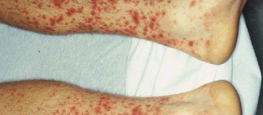 La fiebre manchada cobra su víctima 35
