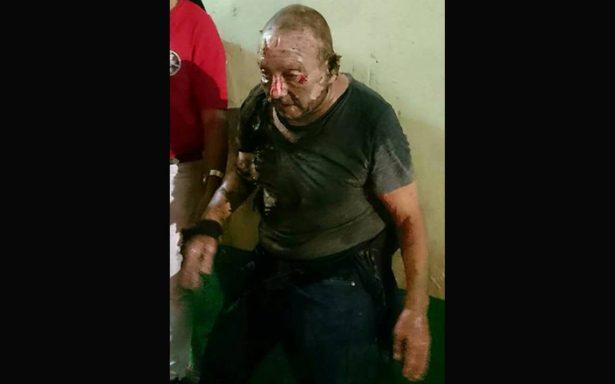 Brutal ataque: incendian a anciano de la calle y muere por quemaduras